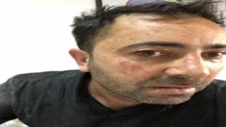 Iğdır eski Belediye Başkan yardımcısı Yunanistan sınırında gözaltına alındı